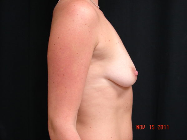 breast-augmentation-pre-op-2-virginia-beach-plastic-surgeon-VA-106-JSA