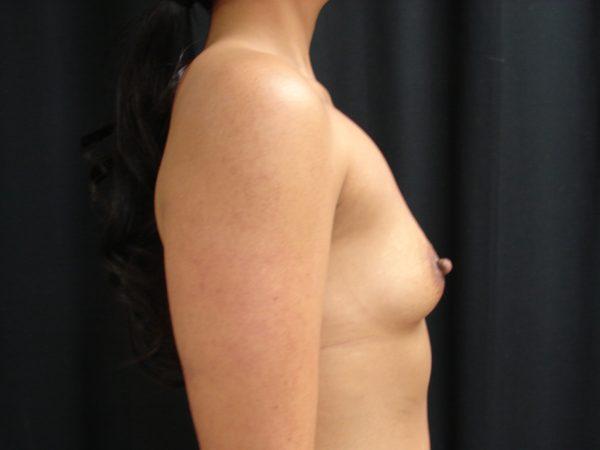 breast-augmentation-pre-op-2-virginia-beach-plastic-surgeon-VA-106-JSJ