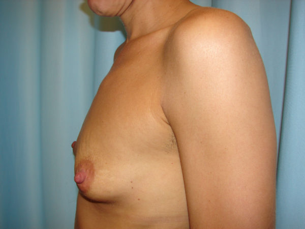 breast-augmentation-pre-op-2-virginia-beach-plastic-surgeon-VA-107-JSJ