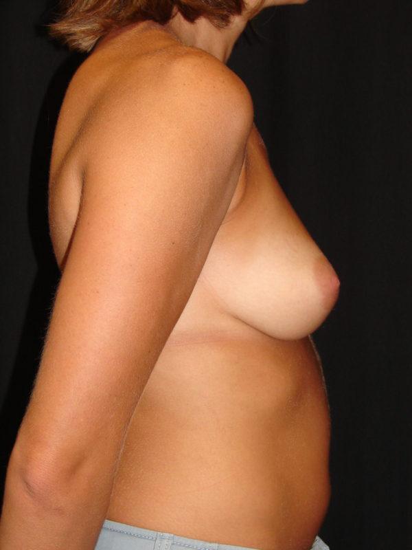 breast-augmentation-pre-op-2-virginia-beach-plastic-surgeon-VA-107-MJD