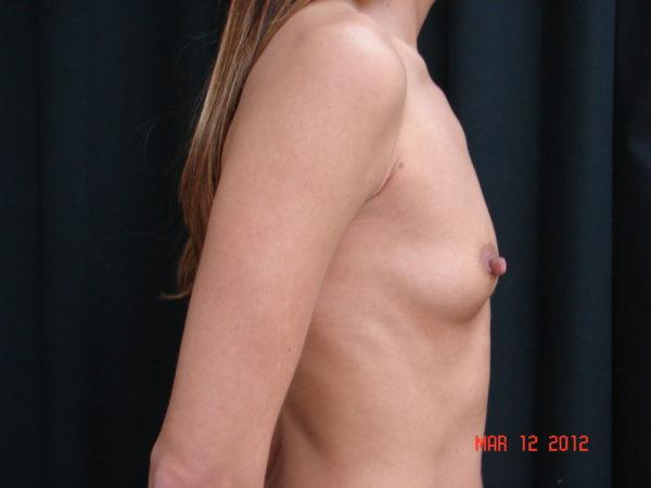 breast-augmentation-pre-op-2-virginia-beach-plastic-surgeon-VA-108-JSA