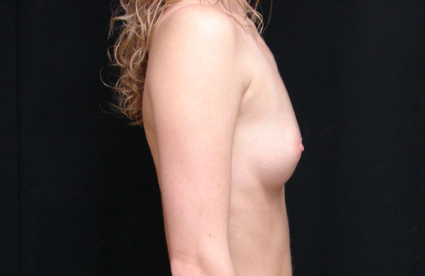 breast-augmentation-pre-op-2-virginia-beach-plastic-surgeons-VA-104-JSA