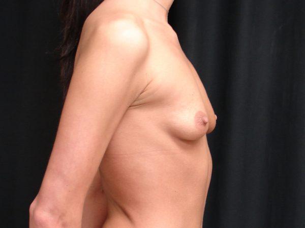 breast-augmentation-pre-op-2-virginia-beach-plastic-surgeons-VA-105-JSA