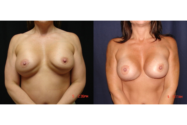 breast-augmentation-revision-before-and-after-virginia-beach-plastic-surgeon-VA-101-JSJ