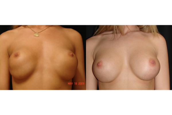 breast-augmentation-revision-before-and-after-virginia-beach-plastic-surgeon-VA-101-MJD