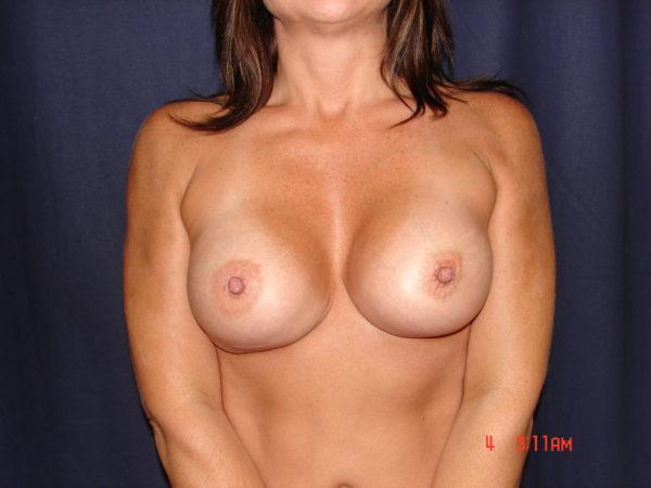 breast-augmentation-revision-post-op-1-virginia-beach-plastic-surgeon-VA-101-JSJ