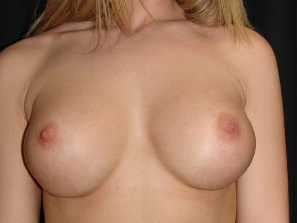 breast-augmentation-revision-post-op-1-virginia-beach-plastic-surgeon-VA-101-MJD