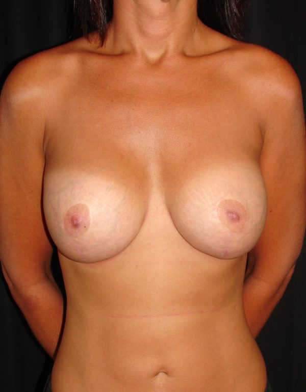 breast-augmentation-revision-post-op-1-virginia-beach-plastic-surgeon-VA-102-MJD