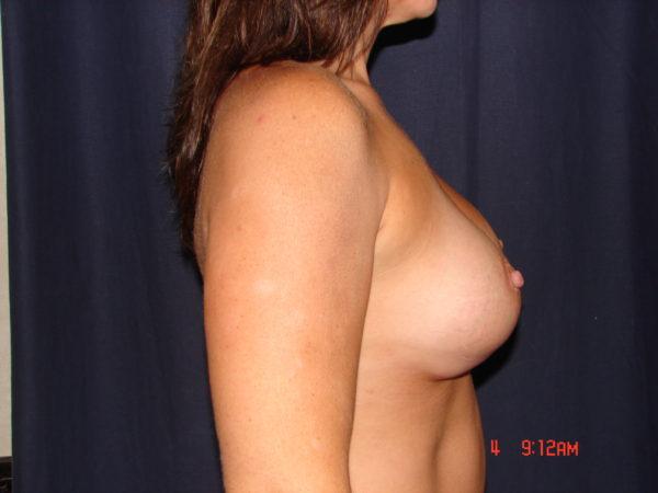 breast-augmentation-revision-post-op-2-virginia-beach-plastic-surgeon-VA-101-JSJ