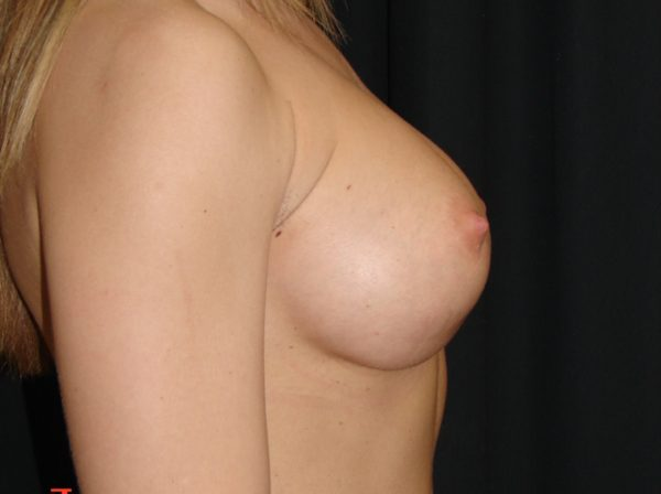 breast-augmentation-revision-post-op-2-virginia-beach-plastic-surgeon-VA-101-MJD