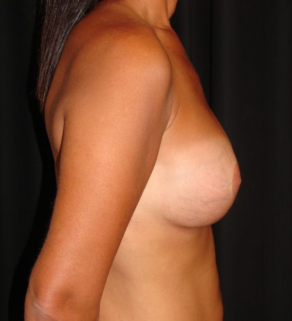 breast-augmentation-revision-post-op-2-virginia-beach-plastic-surgeon-VA-102-MJD