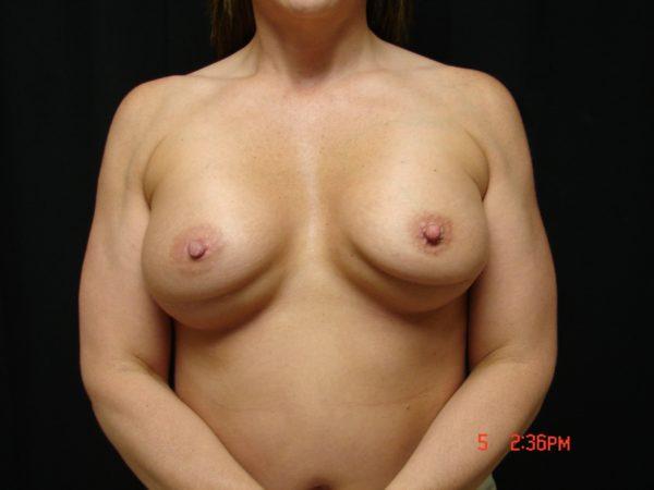 breast-augmentation-revision-pre-op-1-virginia-beach-plastic-surgeon-VA-101-JSJ