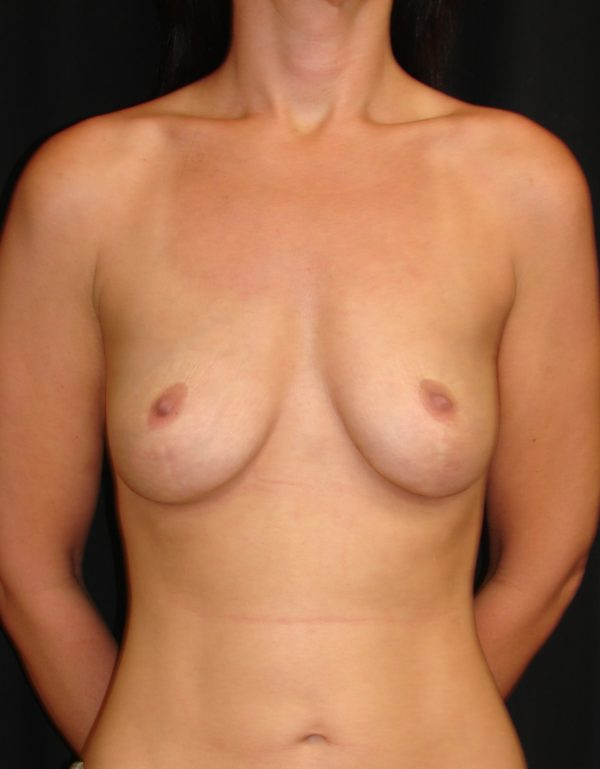 breast-augmentation-revision-pre-op-1-virginia-beach-plastic-surgeon-VA-102-MJD
