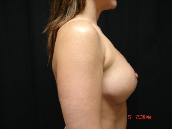 breast-augmentation-revision-pre-op-2-virginia-beach-plastic-surgeon-VA-101-JSJ