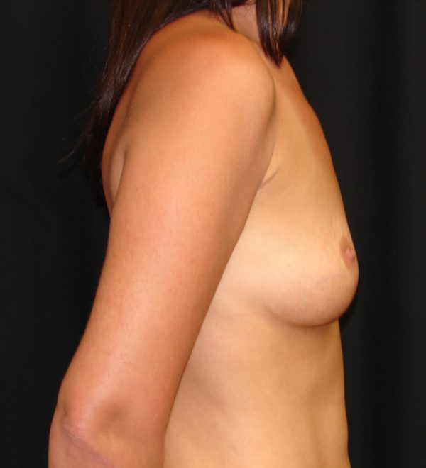 breast-augmentation-revision-pre-op-2-virginia-beach-plastic-surgeon-VA-102-MJD