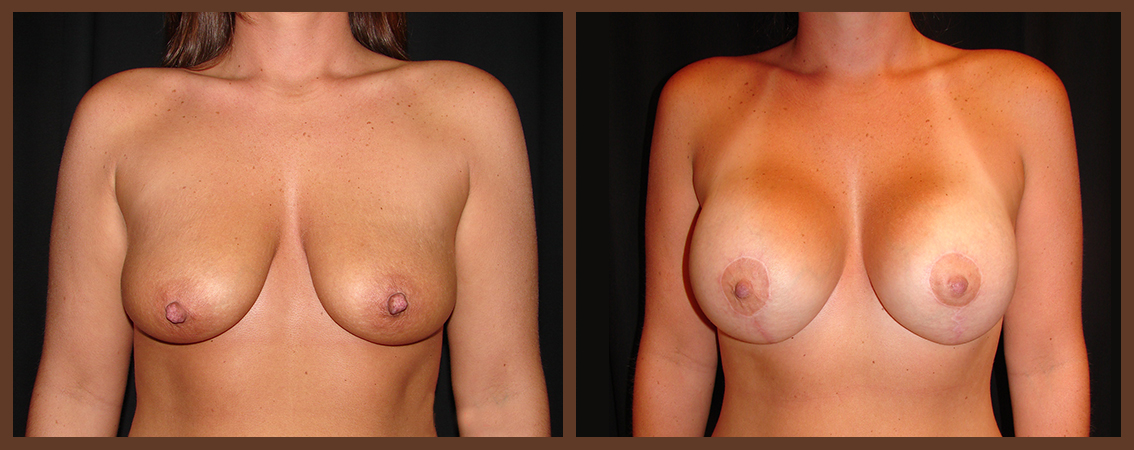 breast-augmentation-with-lift-before-and-after-1-virginia-beach-plastic-surgeon-VA-0028-denk