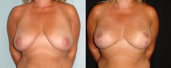 breast-augmentation-with-lift-before-and-after-1-virginia-beach-plastic-surgeon-VA-0029-Denk
