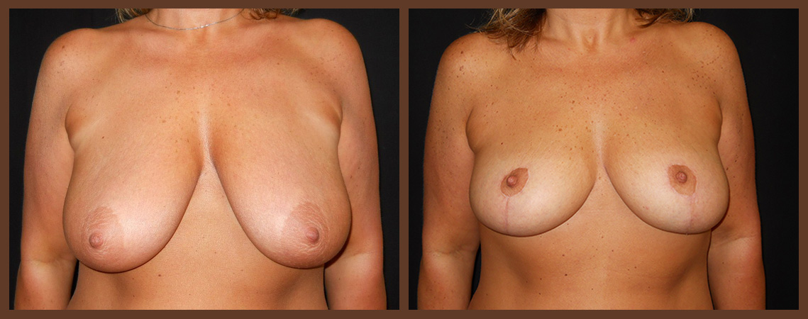 breast-augmentation-with-lift-before-and-after-1-virginia-beach-plastic-surgeon-VA-0031-jacobs