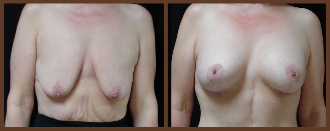 breast-augmentation-with-lift-before-and-after-1-virginia-beach-plastic-surgeon-VA-0032-JSA