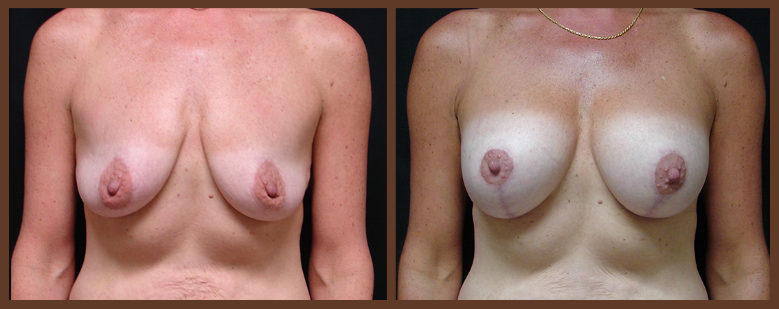 breast-augmentation-with-lift-before-and-after-1-virginia-beach-plastic-surgeon-VA-0034-JSA
