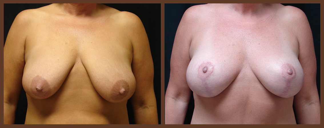 breast-augmentation-with-lift-before-and-after-1-virginia-beach-plastic-surgeon-VA-0035-JSA