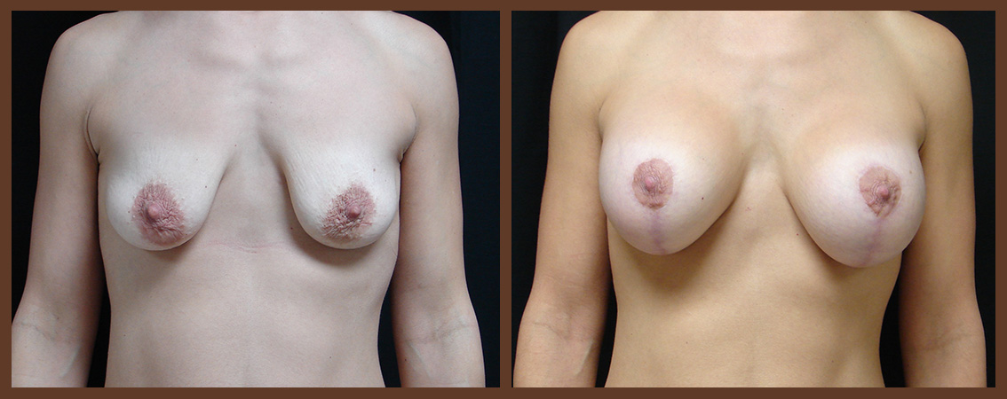 breast-augmentation-with-lift-before-and-after-1-virginia-beach-plastic-surgeon-VA-0036-JSA