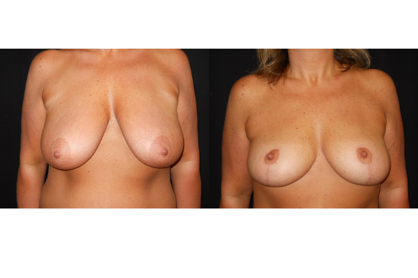 breast-augmentation-with-lift-before-and-after-1-virginia-beach-plastic-surgeon-VA-103-JSJ