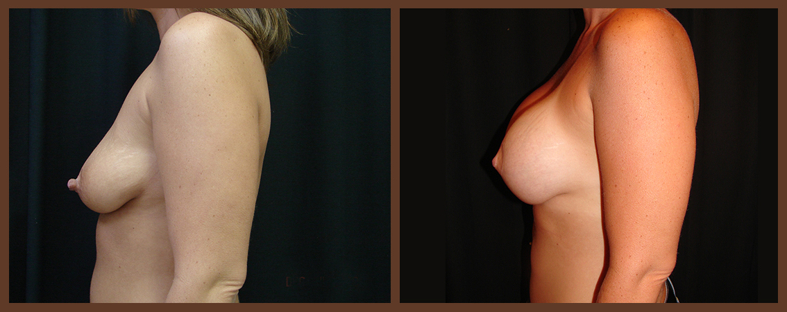breast-augmentation-with-lift-before-and-after-2-virginia-beach-plastic-surgeon-VA-0028-denk