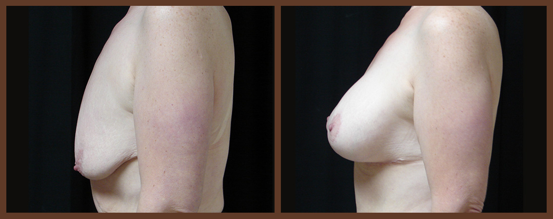 breast-augmentation-with-lift-before-and-after-2-virginia-beach-plastic-surgeon-VA-0032-JSA