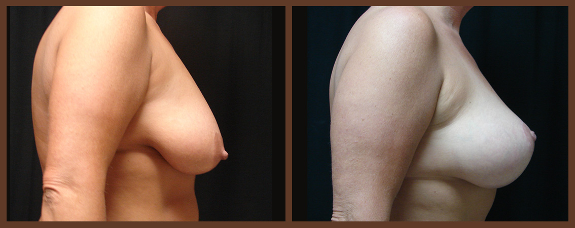 breast-augmentation-with-lift-before-and-after-2-virginia-beach-plastic-surgeon-VA-0035-JSA