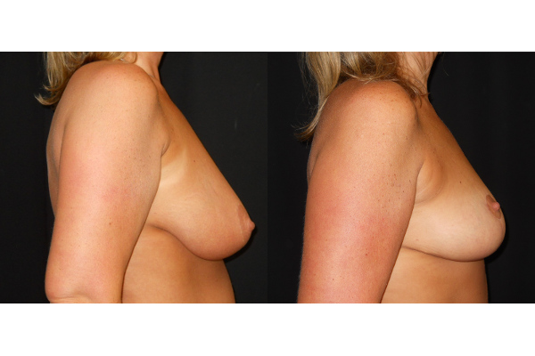breast-augmentation-with-lift-before-and-after-2-virginia-beach-plastic-surgeon-VA-103-JSJ