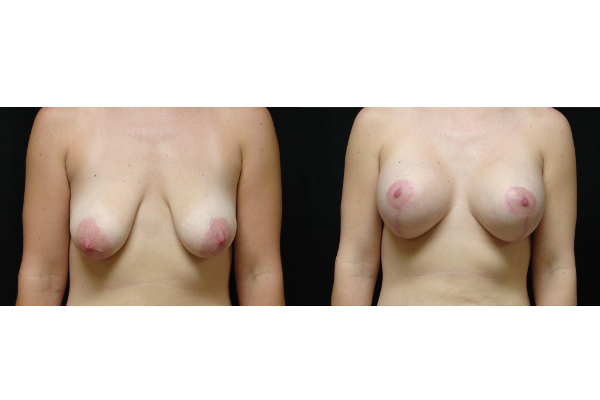 breast-augmentation-with-lift-before-and-after-virginia-beach-plastic-surgeon-VA-101-JSA
