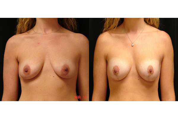 breast-augmentation-with-lift-before-and-after-virginia-beach-plastic-surgeon-VA-101-MJD