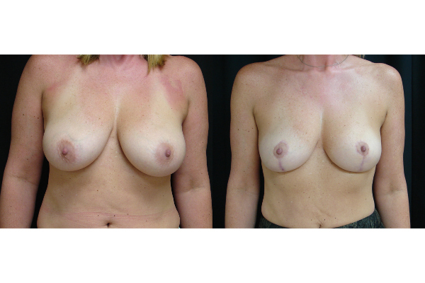breast-augmentation-with-lift-before-and-after-virginia-beach-plastic-surgeon-VA-102-JSA