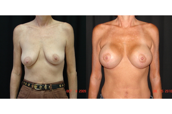 breast-augmentation-with-lift-before-and-after-virginia-beach-plastic-surgeon-VA-103-JSA