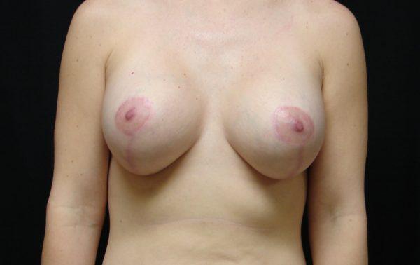 breast-augmentation-with-lift-post-op-1-virginia-beach-plastic-surgeon-VA-101-JSA