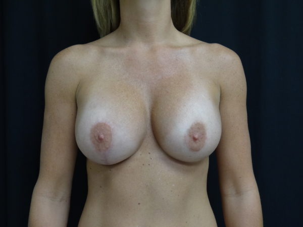 breast-augmentation-with-lift-post-op-1-virginia-beach-plastic-surgeon-VA-101-JSJ
