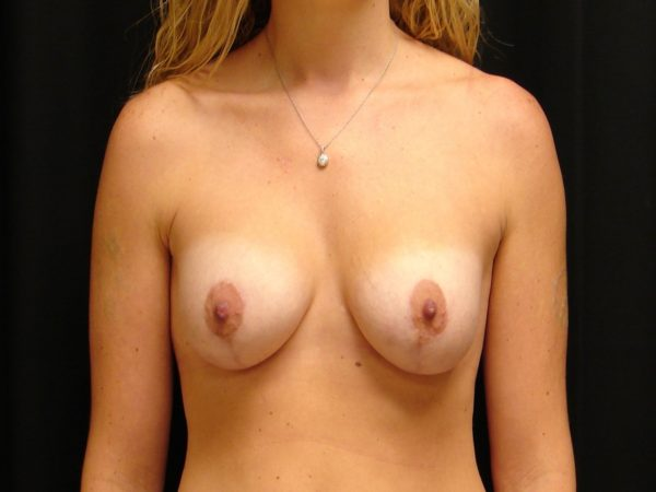 breast-augmentation-with-lift-post-op-1-virginia-beach-plastic-surgeon-VA-101-MJD