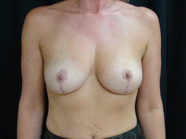 breast-augmentation-with-lift-post-op-1-virginia-beach-plastic-surgeon-VA-102-JSA