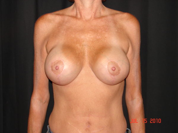 breast-augmentation-with-lift-post-op-1-virginia-beach-plastic-surgeon-VA-103-JSA