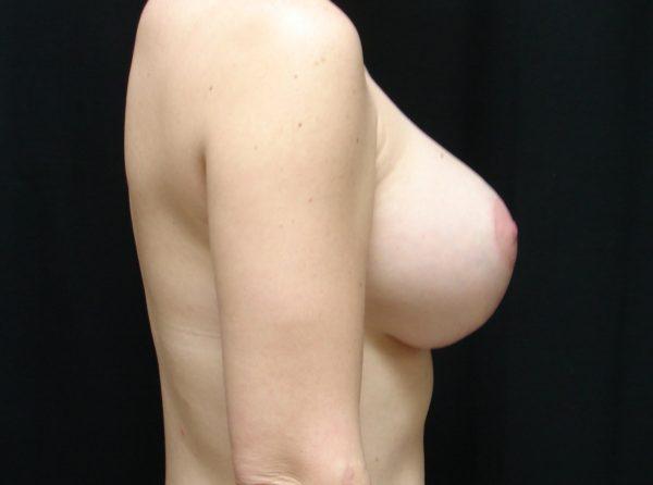 breast-augmentation-with-lift-post-op-2-virginia-beach-plastic-surgeon-VA-101-JSA