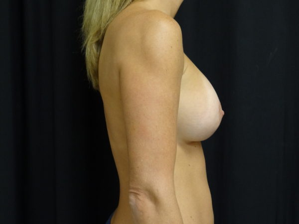 breast-augmentation-with-lift-post-op-2-virginia-beach-plastic-surgeon-VA-101-JSJ