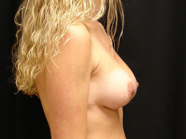 breast-augmentation-with-lift-post-op-2-virginia-beach-plastic-surgeon-VA-101-MJD