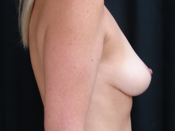 breast-augmentation-with-lift-post-op-2-virginia-beach-plastic-surgeon-VA-102-JSA