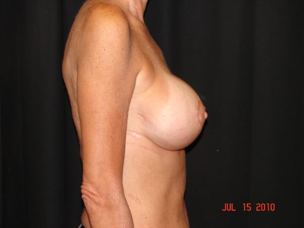 breast-augmentation-with-lift-post-op-2-virginia-beach-plastic-surgeon-VA-103-JSA