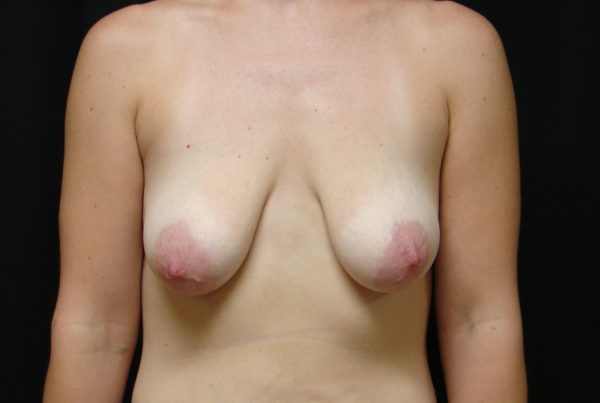 breast-augmentation-with-lift-pre-op-1-virginia-beach-plastic-surgeon-VA-101-JSA