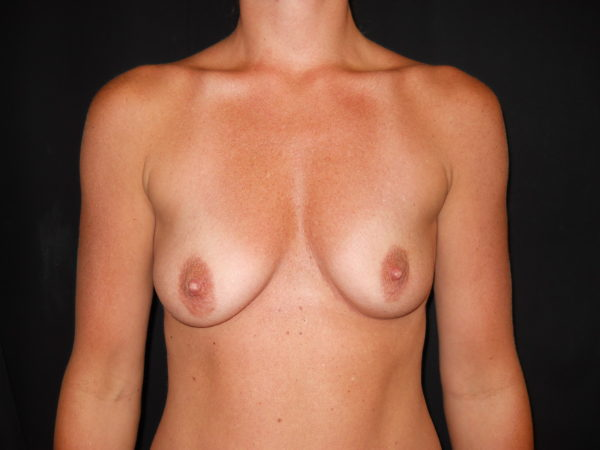 breast-augmentation-with-lift-pre-op-1-virginia-beach-plastic-surgeon-VA-101-JSJ