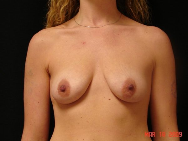 breast-augmentation-with-lift-pre-op-1-virginia-beach-plastic-surgeon-VA-101-MJD