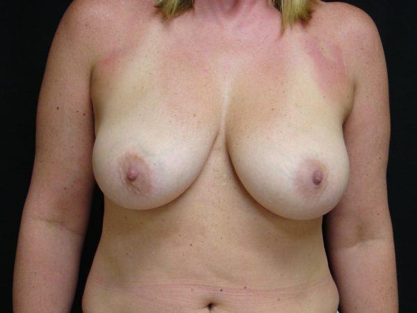 breast-augmentation-with-lift-pre-op-1-virginia-beach-plastic-surgeon-VA-102-JSA