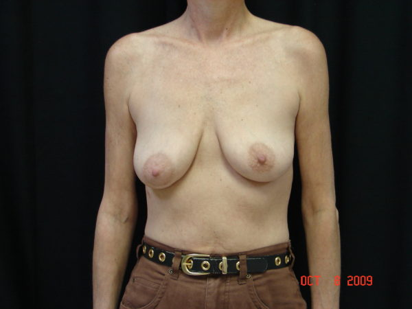 breast-augmentation-with-lift-pre-op-1-virginia-beach-plastic-surgeon-VA-103-JSA